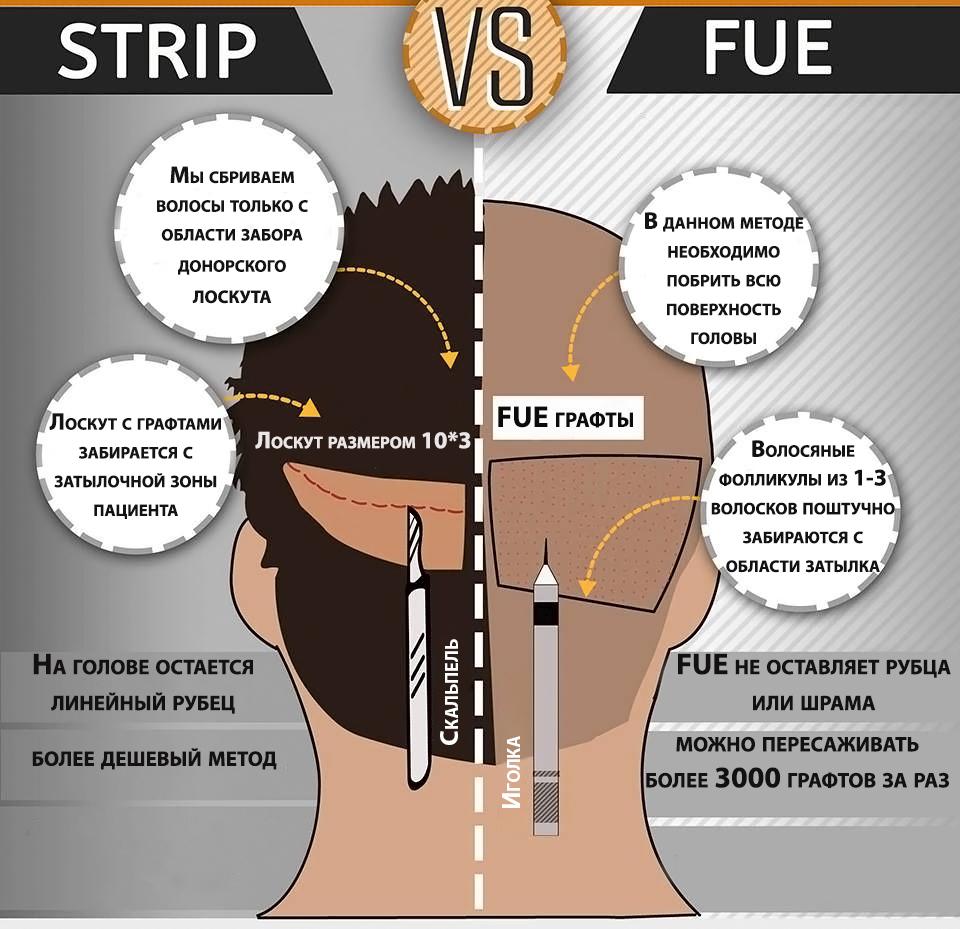 strip fue метод пересадки волосся
